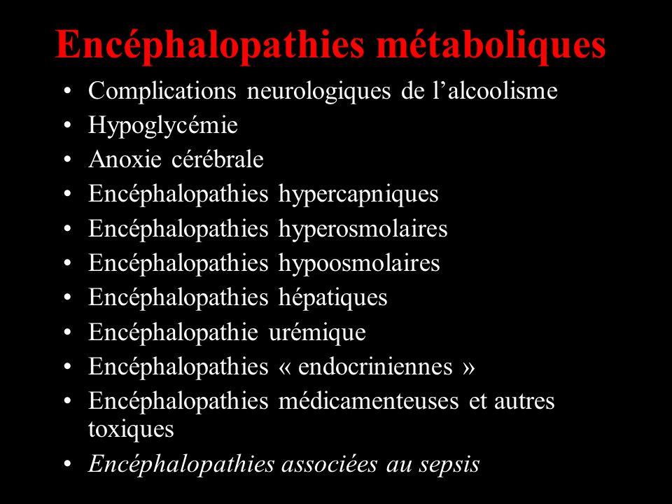 Encéphalopathies métaboliques
