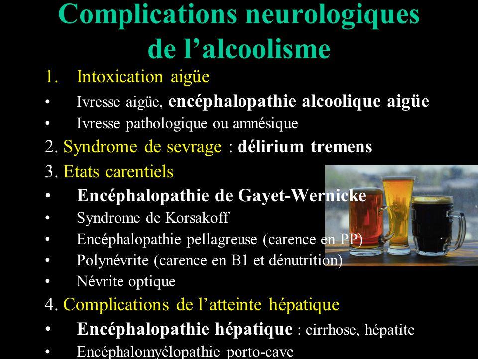 Complications neurologiques de l'alcoolisme