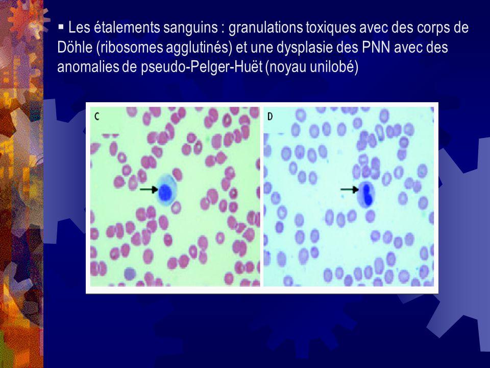 Les étalements sanguins : granulations toxiques avec des corps de Döhle (ribosomes agglutinés) et une dysplasie des PNN avec des anomalies de pseudo-Pelger-Huët (noyau unilobé)