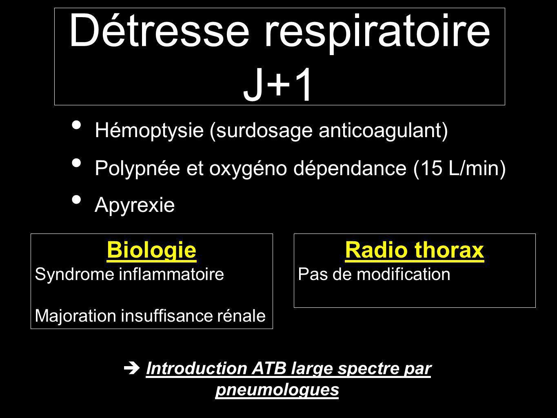Détresse respiratoire J+1
