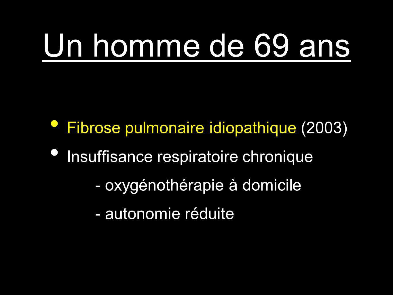 Un homme de 69 ans Fibrose pulmonaire idiopathique (2003)