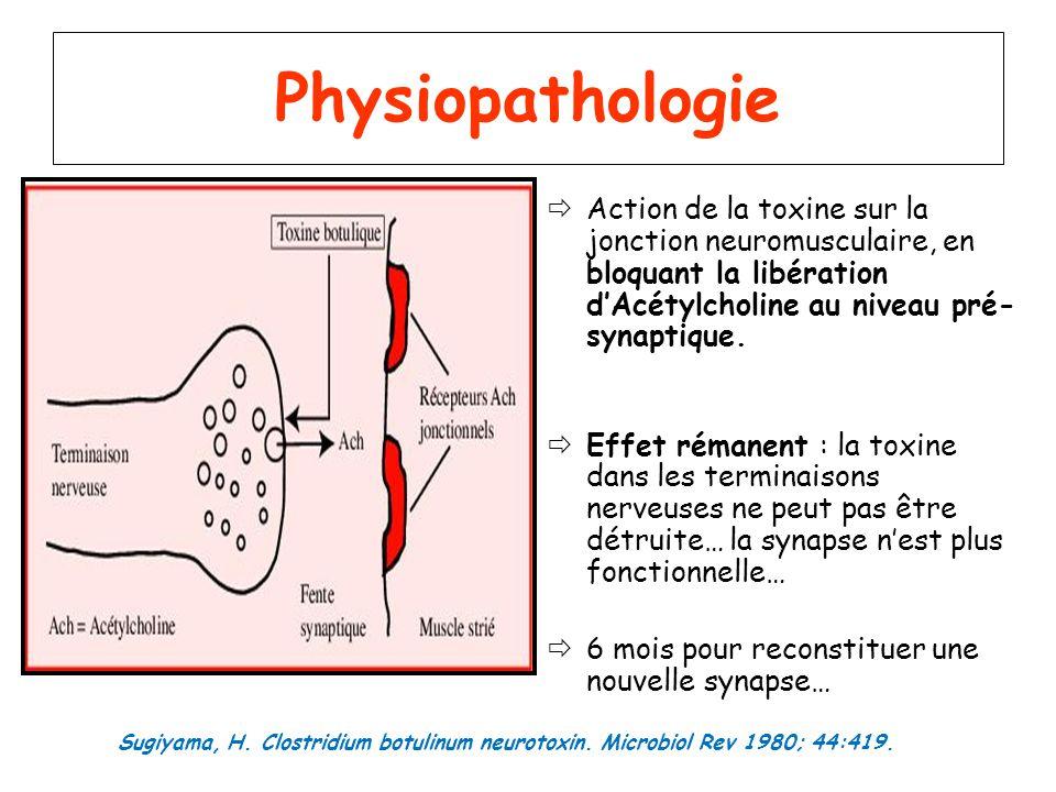 Physiopathologie Action de la toxine sur la jonction neuromusculaire, en bloquant la libération d'Acétylcholine au niveau pré-synaptique.