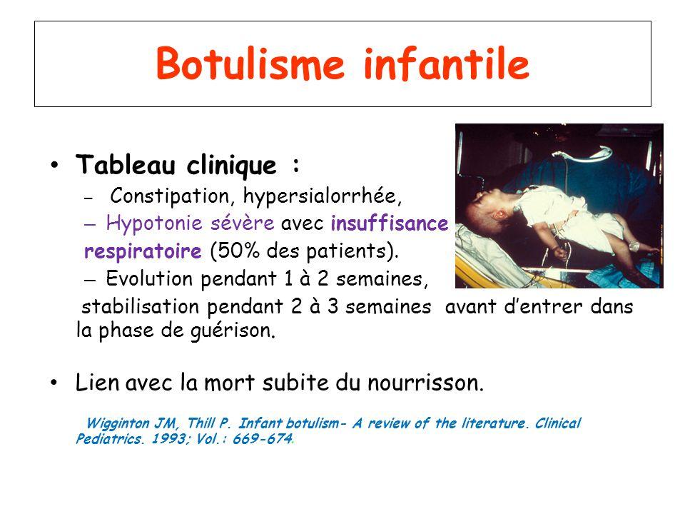 Botulisme infantile Tableau clinique :