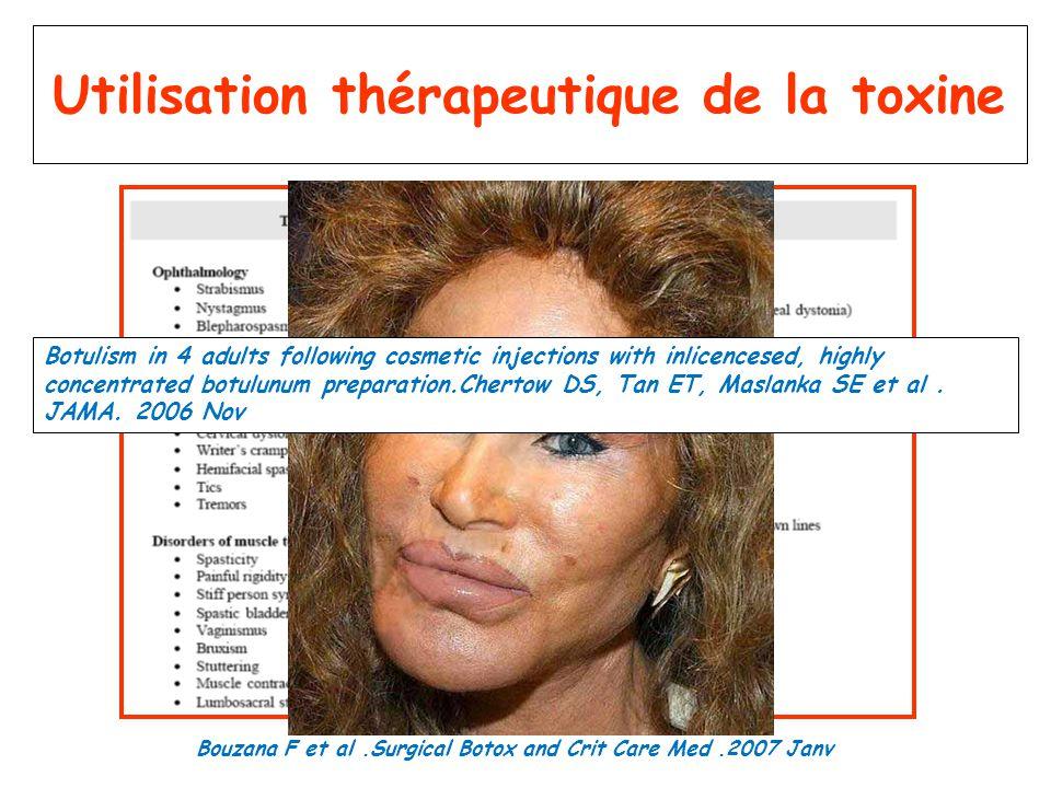 Utilisation thérapeutique de la toxine