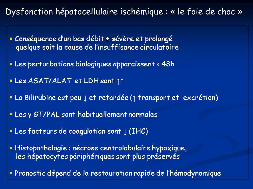 Dysfonction hépatocellulaire ischémique : « le foie de choc »