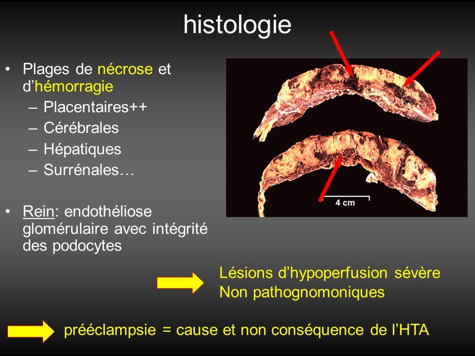 histologie Plages de nécrose et d'hémorragie Placentaires++ Cérébrales