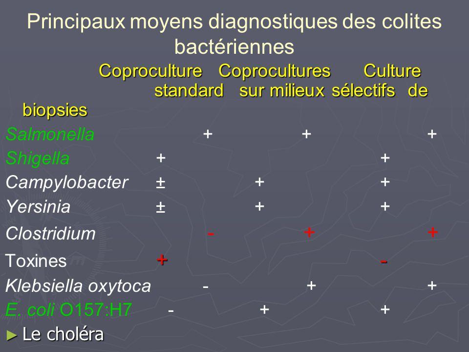 Principaux moyens diagnostiques des colites bactériennes