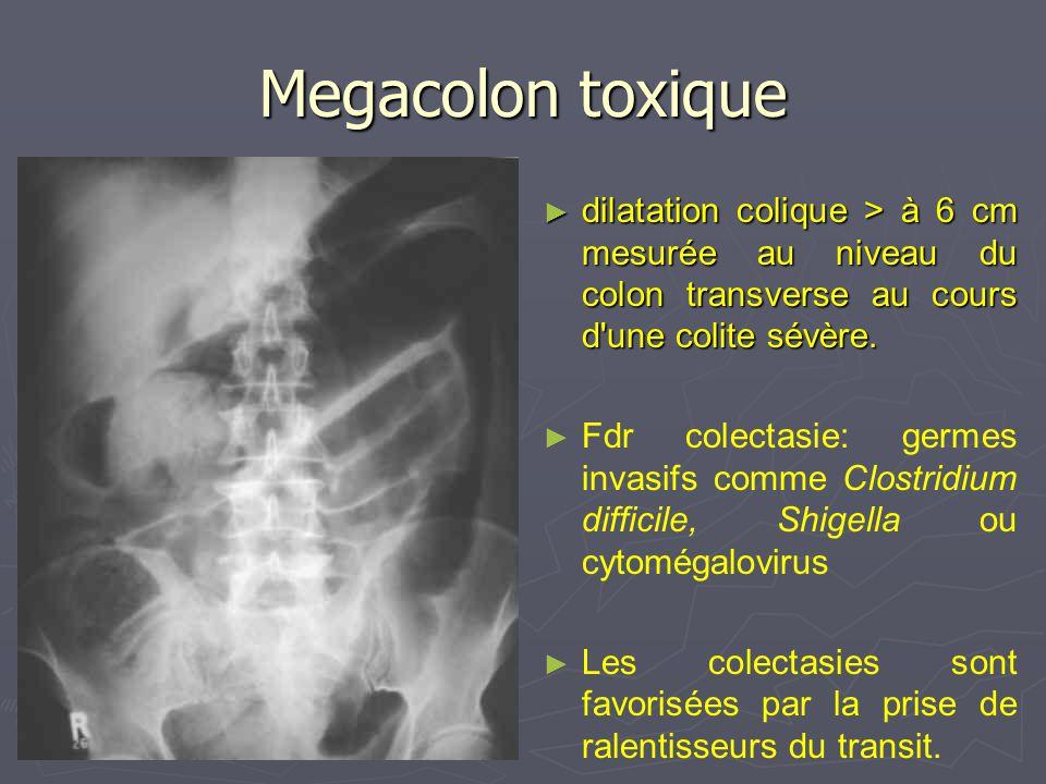 Megacolon toxique dilatation colique > à 6 cm mesurée au niveau du colon transverse au cours d une colite sévère.