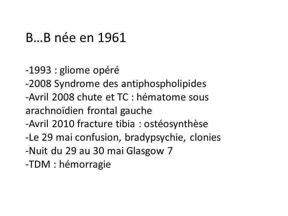 B…B née en 1961 -1993 : gliome opéré