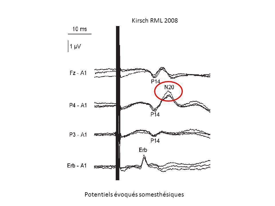 Kirsch RML 2008 Potentiels évoqués somesthésiques