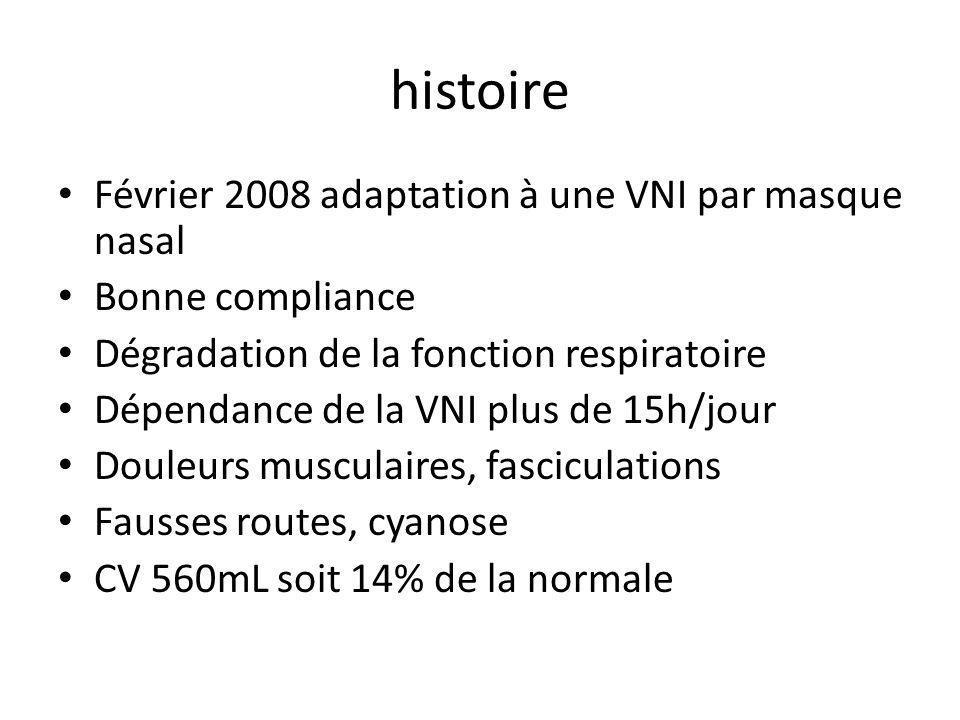 histoire Février 2008 adaptation à une VNI par masque nasal