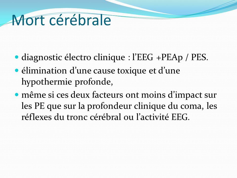 Mort cérébrale diagnostic électro clinique : l'EEG +PEAp / PES.