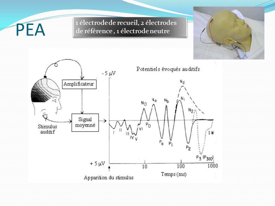 PEA 1 électrode de recueil, 2 électrodes de référence , 1 électrode neutre