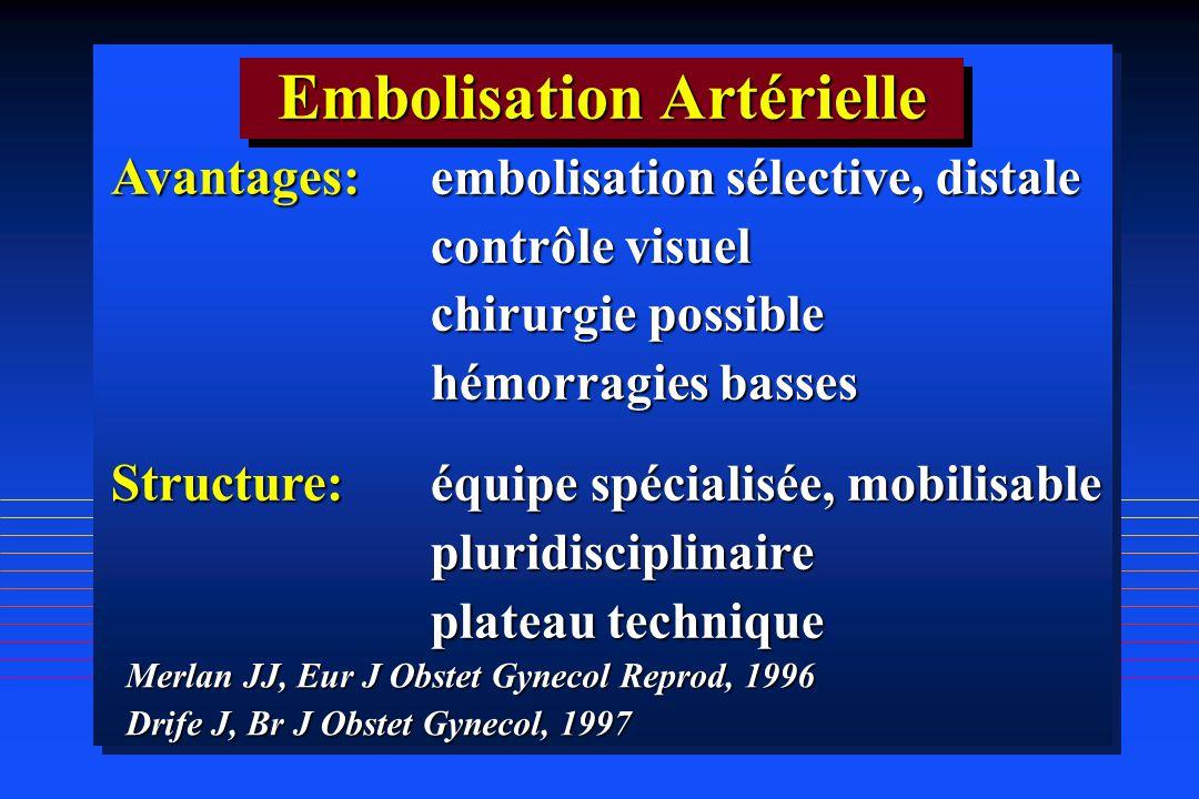 Embolisation Artérielle
