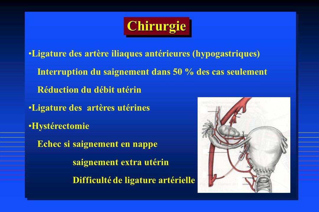 Chirurgie Ligature des artère iliaques antérieures (hypogastriques)