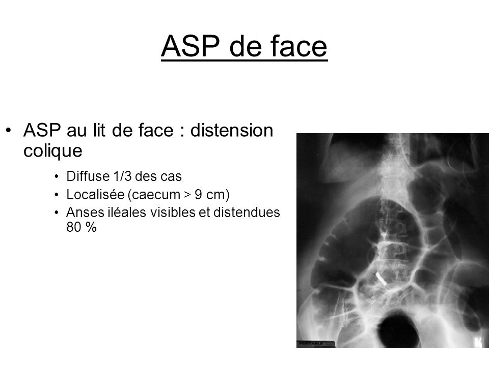 ASP de face ASP au lit de face : distension colique