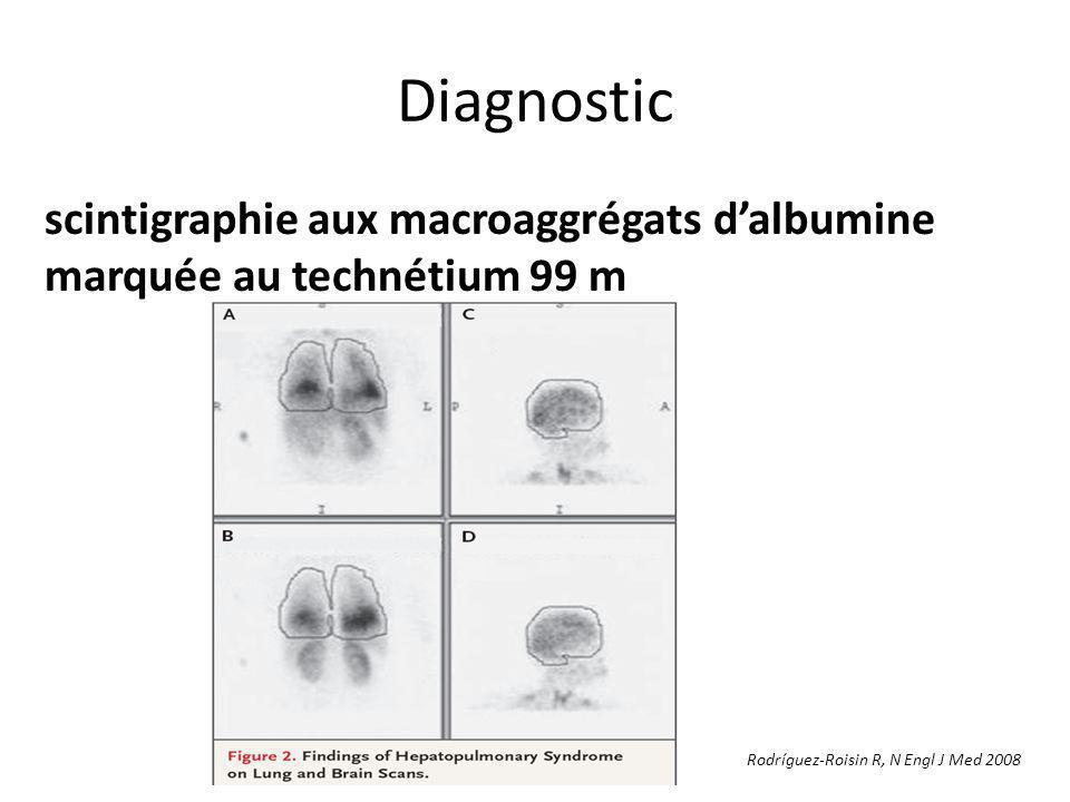 Diagnostic scintigraphie aux macroaggrégats d'albumine marquée au technétium 99 m.