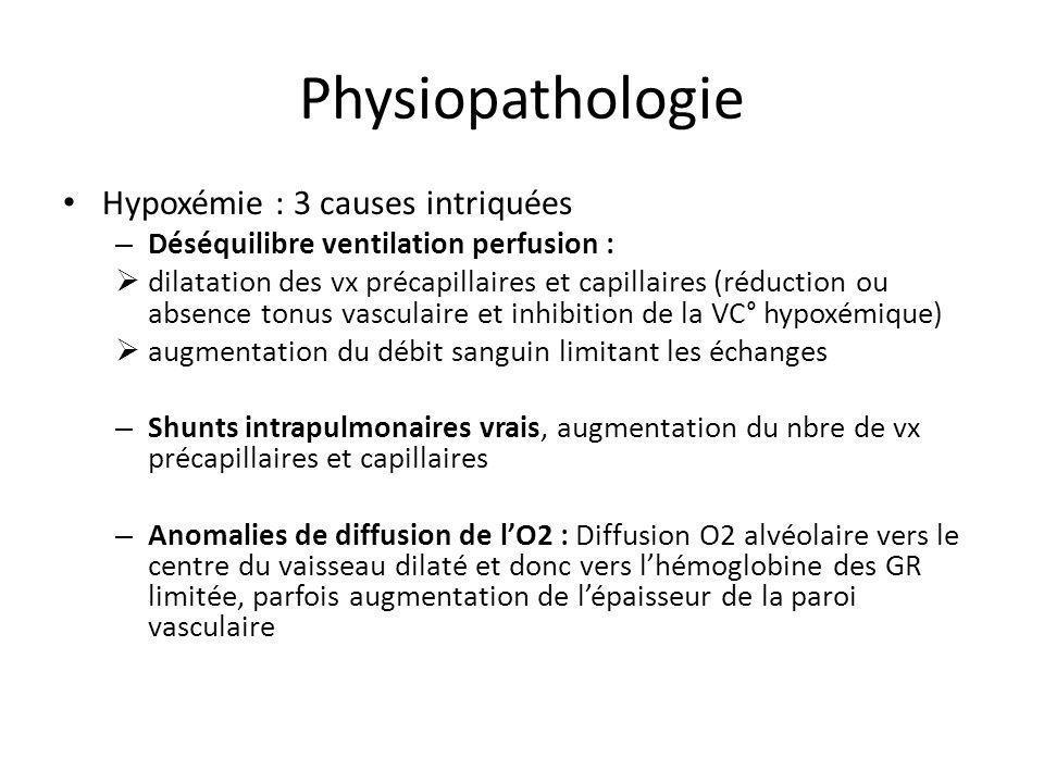 Physiopathologie Hypoxémie : 3 causes intriquées