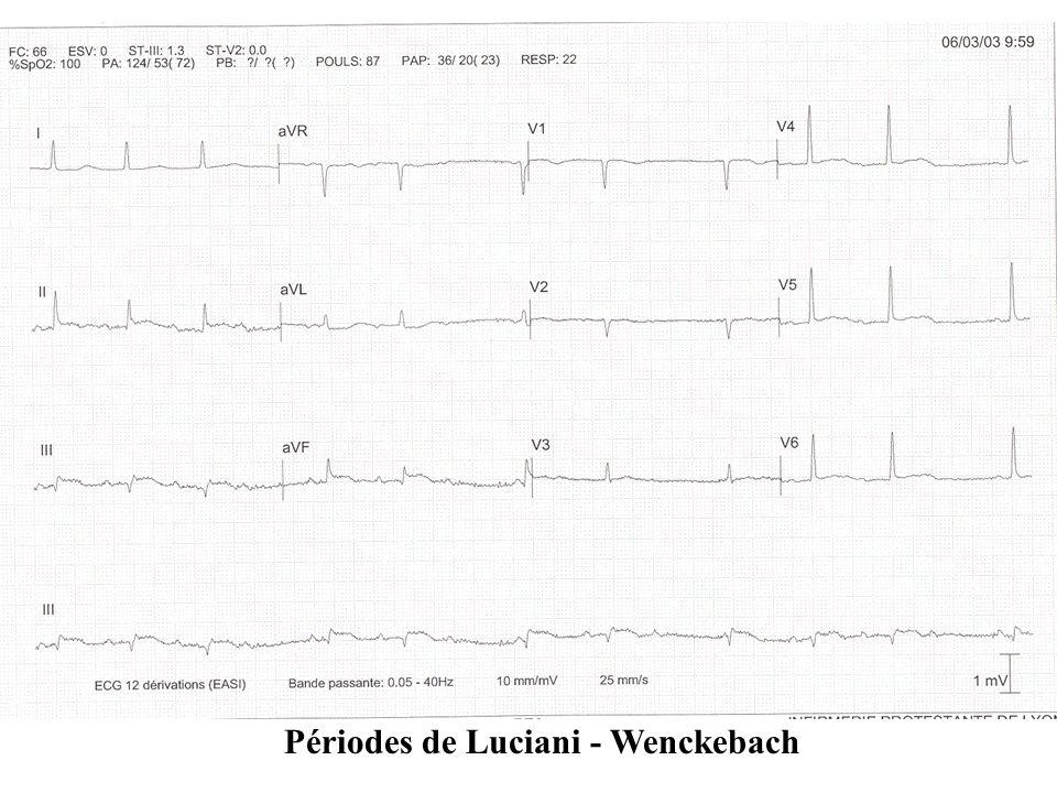 Périodes de Luciani - Wenckebach