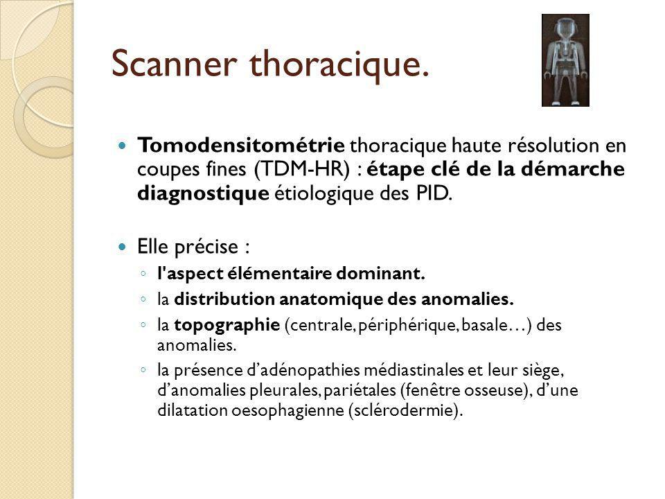 Scanner thoracique.