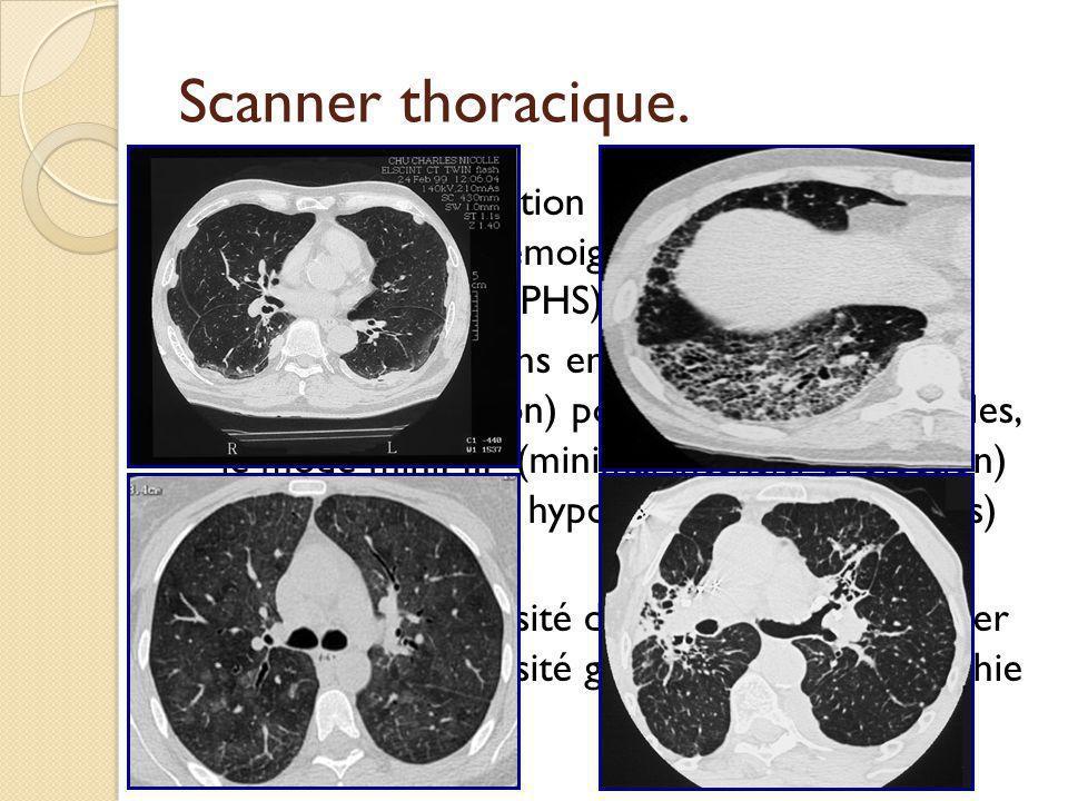 Scanner thoracique. Coupes en expiration pour objectiver un piégeage aérien témoignant d'une atteinte bronchiolaire (ex PHS).