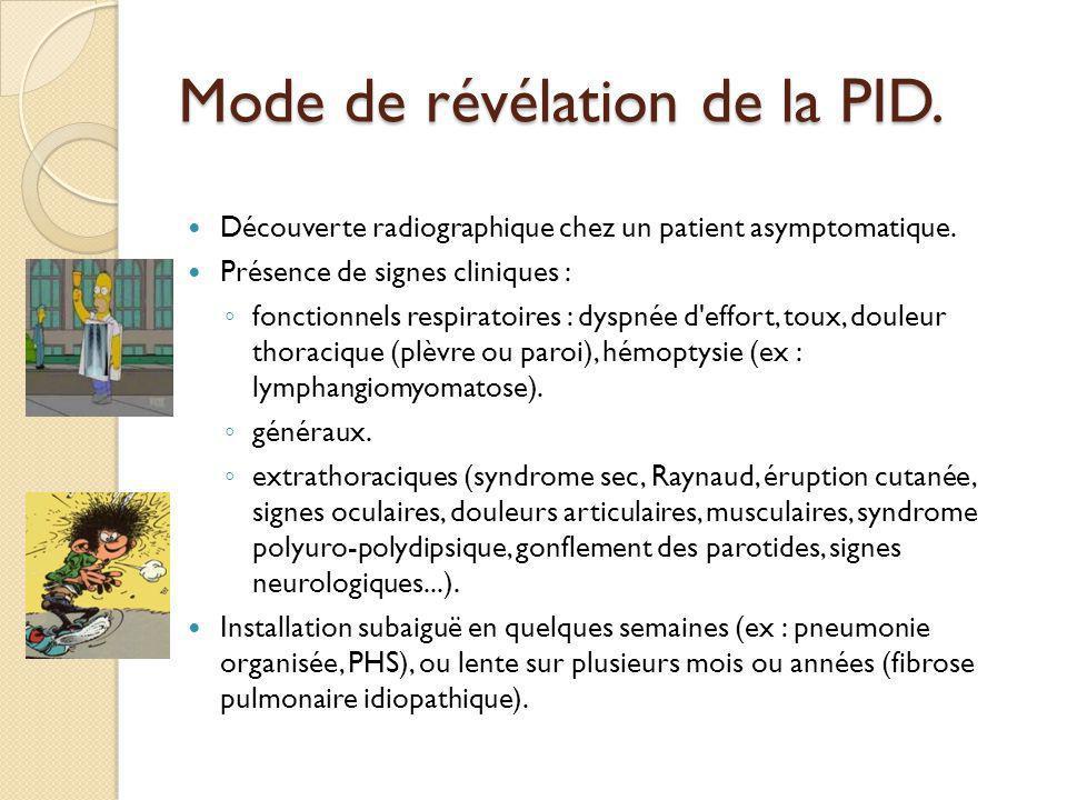 Mode de révélation de la PID.