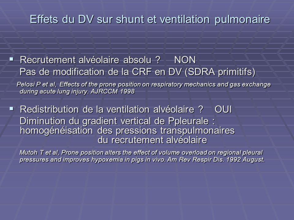 Effets du DV sur shunt et ventilation pulmonaire