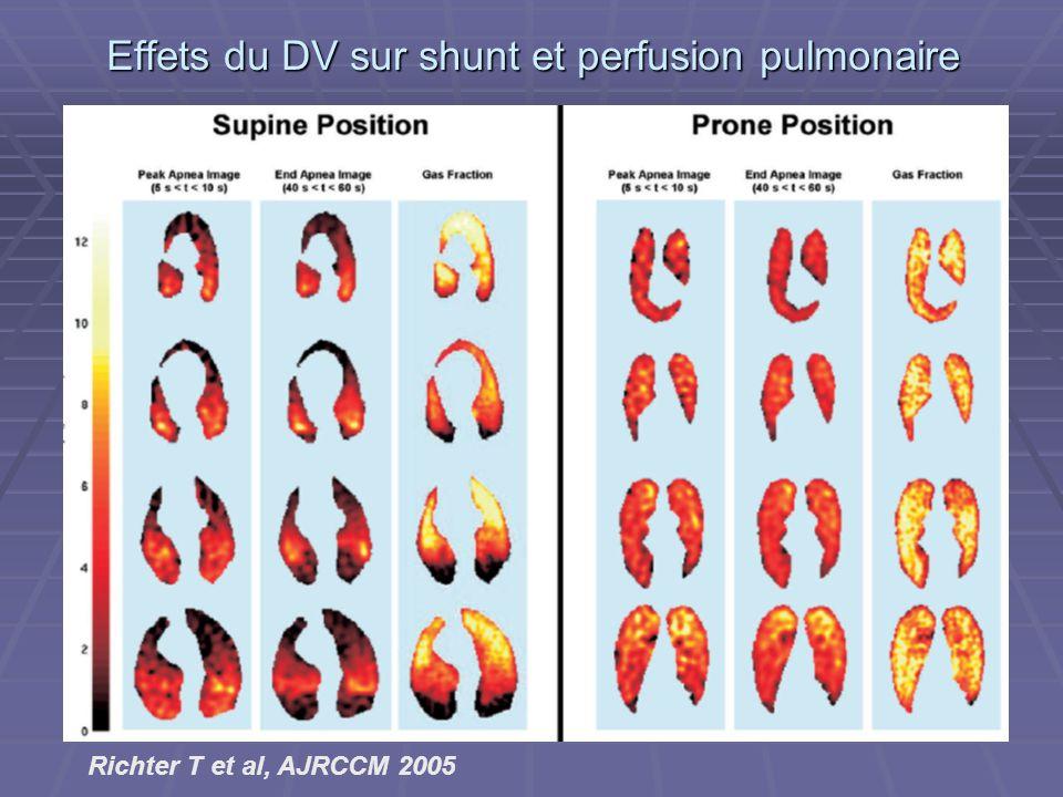 Effets du DV sur shunt et perfusion pulmonaire