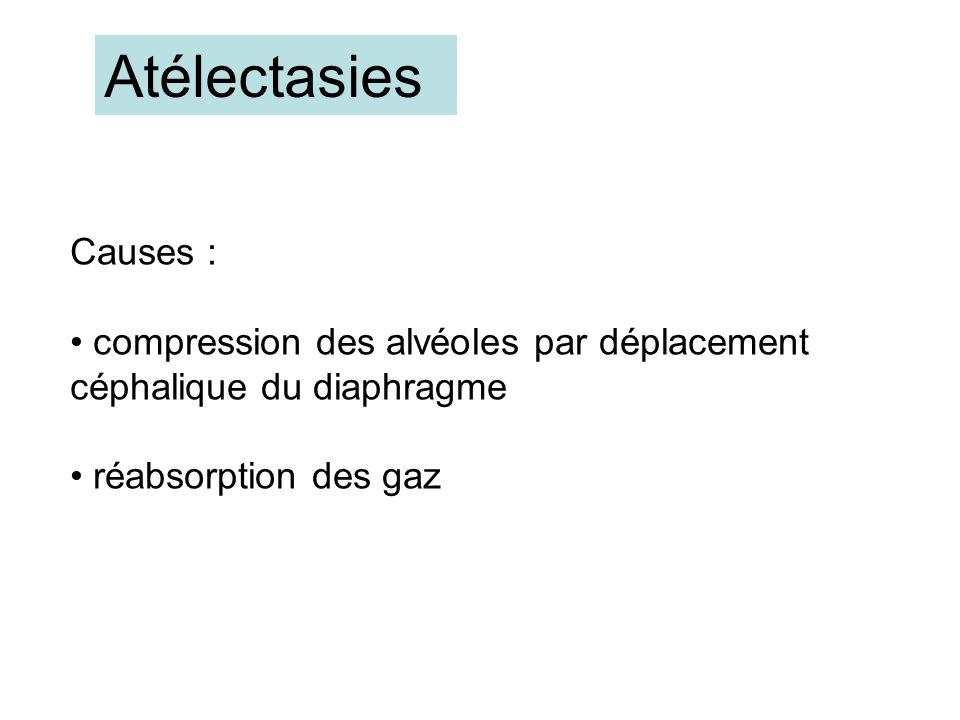 Atélectasies Causes : compression des alvéoles par déplacement céphalique du diaphragme. réabsorption des gaz.