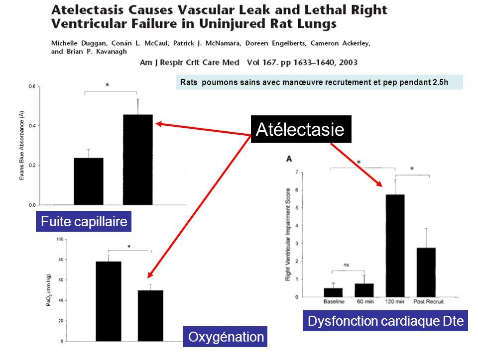 Atélectasie Fuite capillaire Dysfonction cardiaque Dte Oxygénation