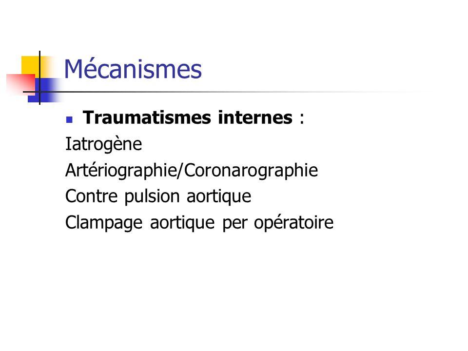 Mécanismes Traumatismes internes : Iatrogène