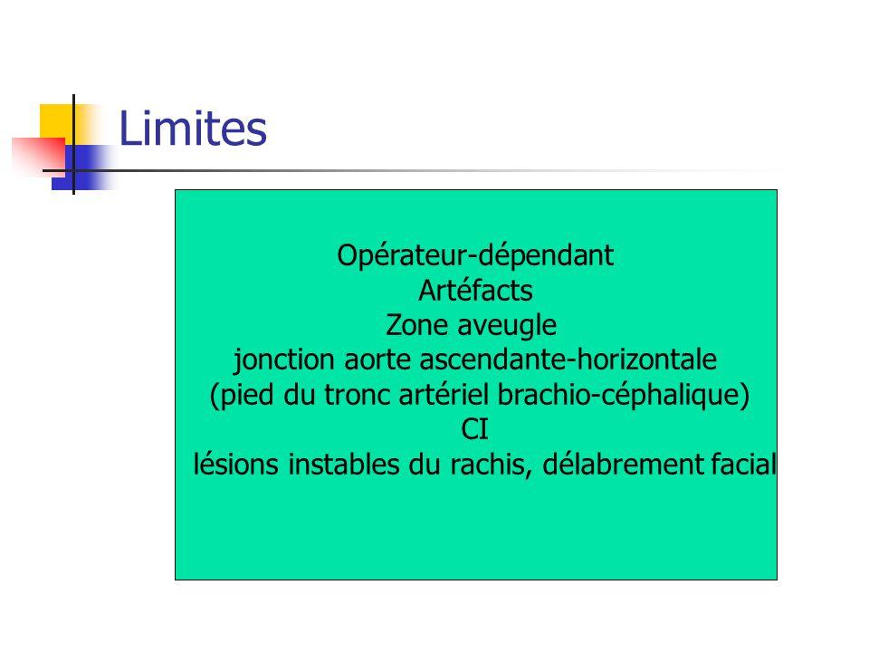 Limites Opérateur-dépendant Artéfacts Zone aveugle