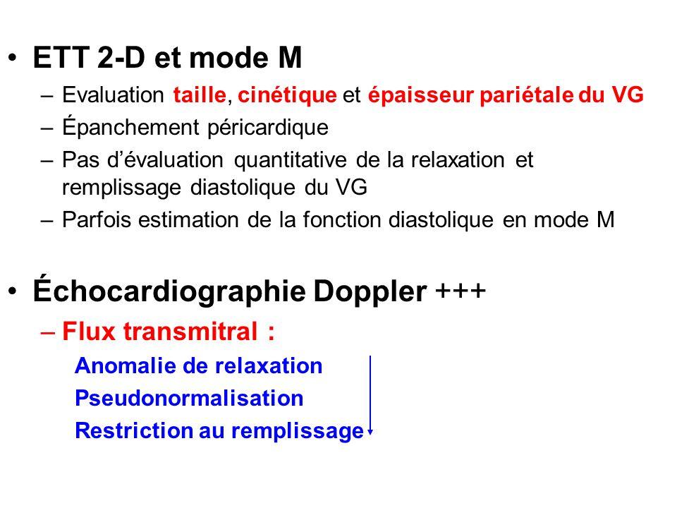 Échocardiographie Doppler +++
