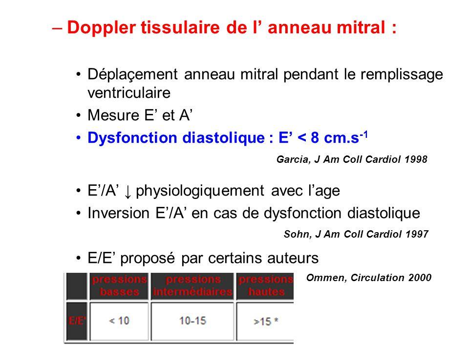 Doppler tissulaire de l' anneau mitral :