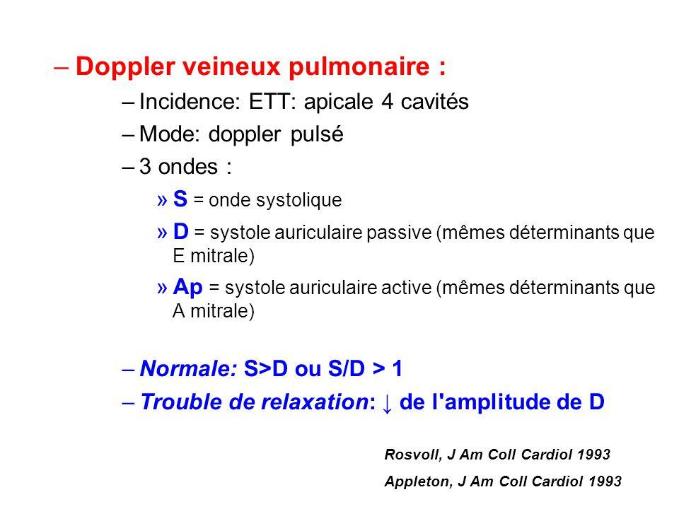Doppler veineux pulmonaire :