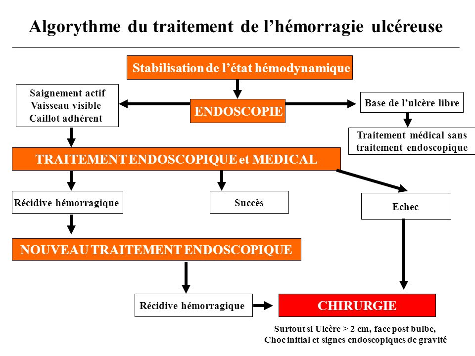 Algorythme du traitement de l'hémorragie ulcéreuse