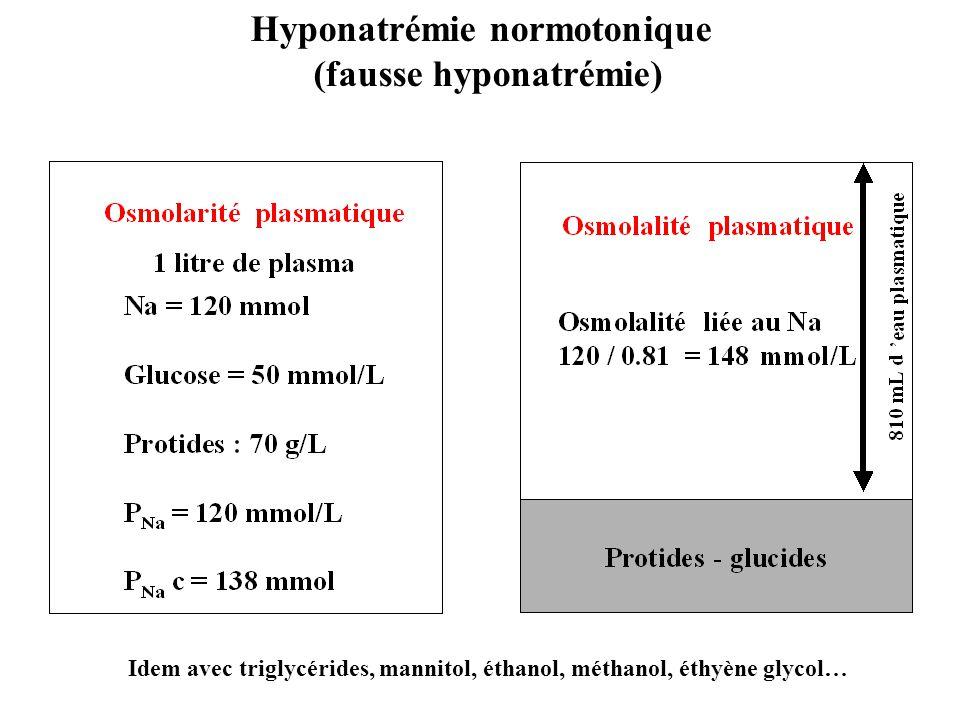 Hyponatrémie normotonique (fausse hyponatrémie)
