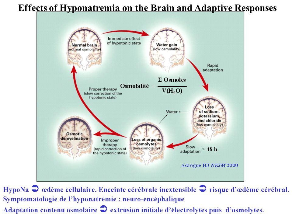 Effects of Hyponatremia on the Brain and Adaptive Responses