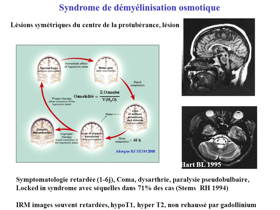 Syndrome de démyélinisation osmotique