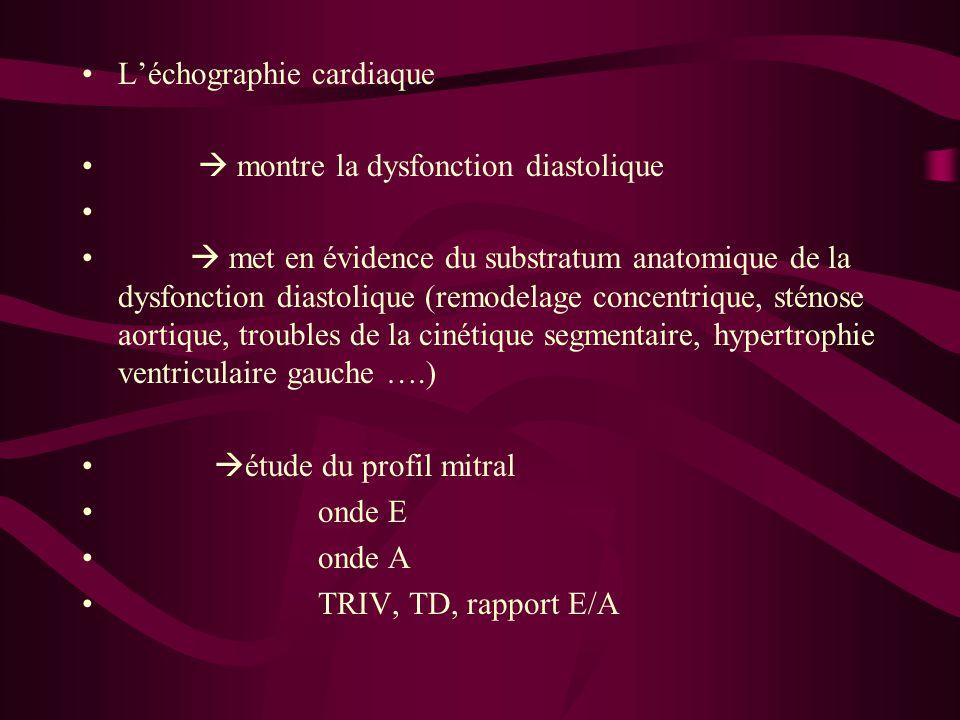 L'échographie cardiaque