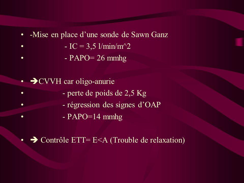 -Mise en place d'une sonde de Sawn Ganz