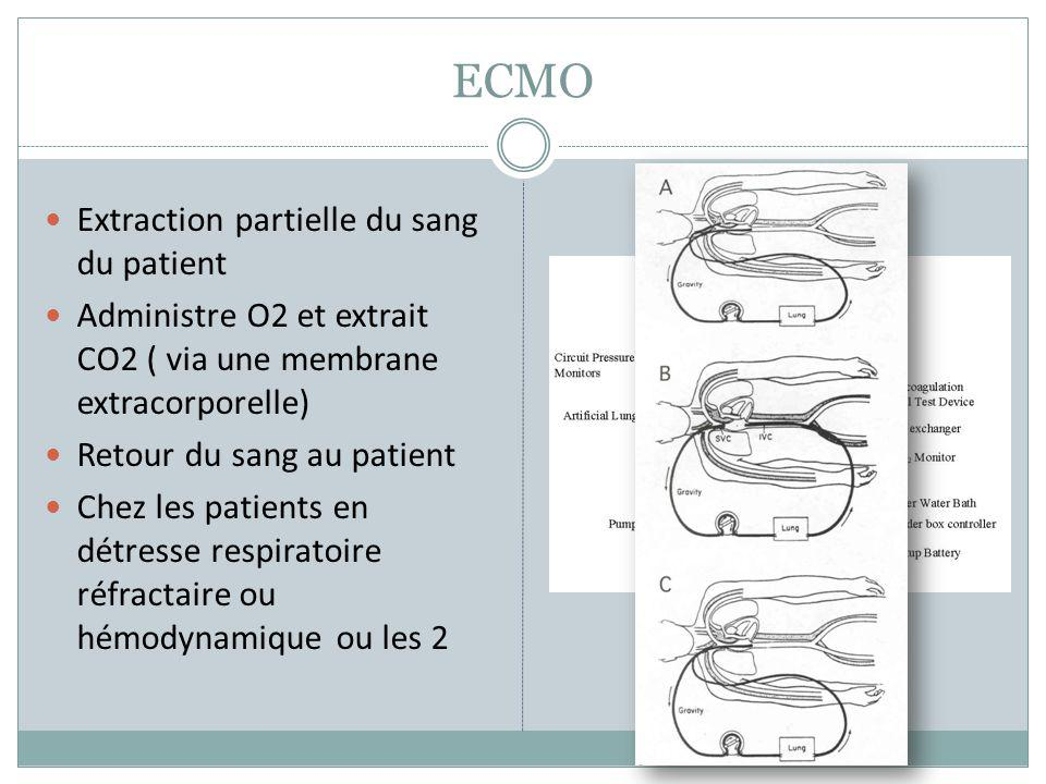 ECMO Extraction partielle du sang du patient