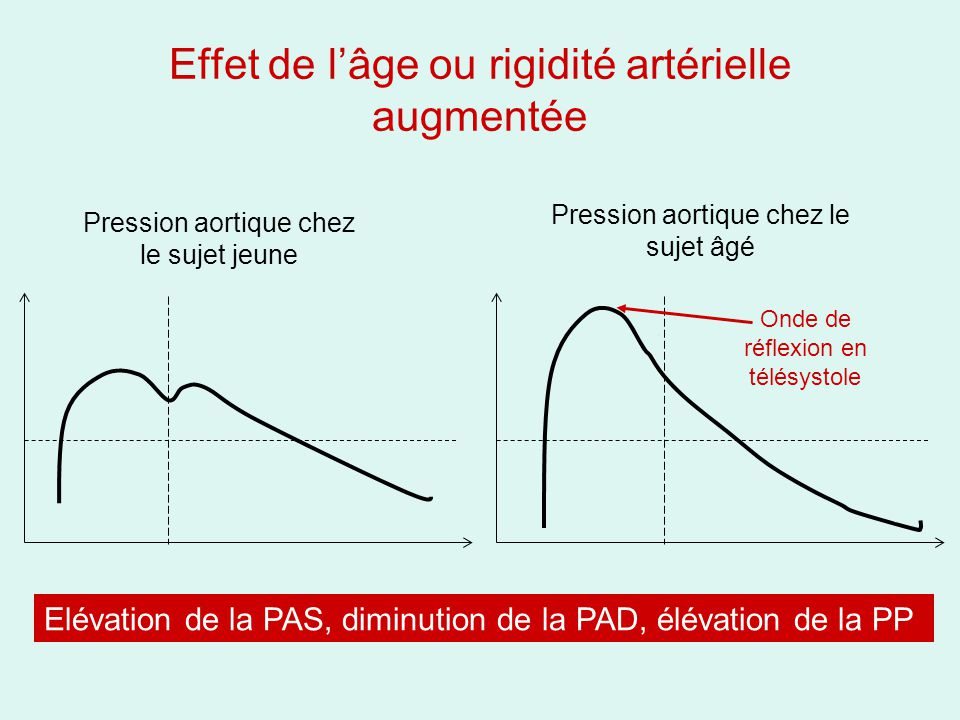 Effet de l'âge ou rigidité artérielle augmentée