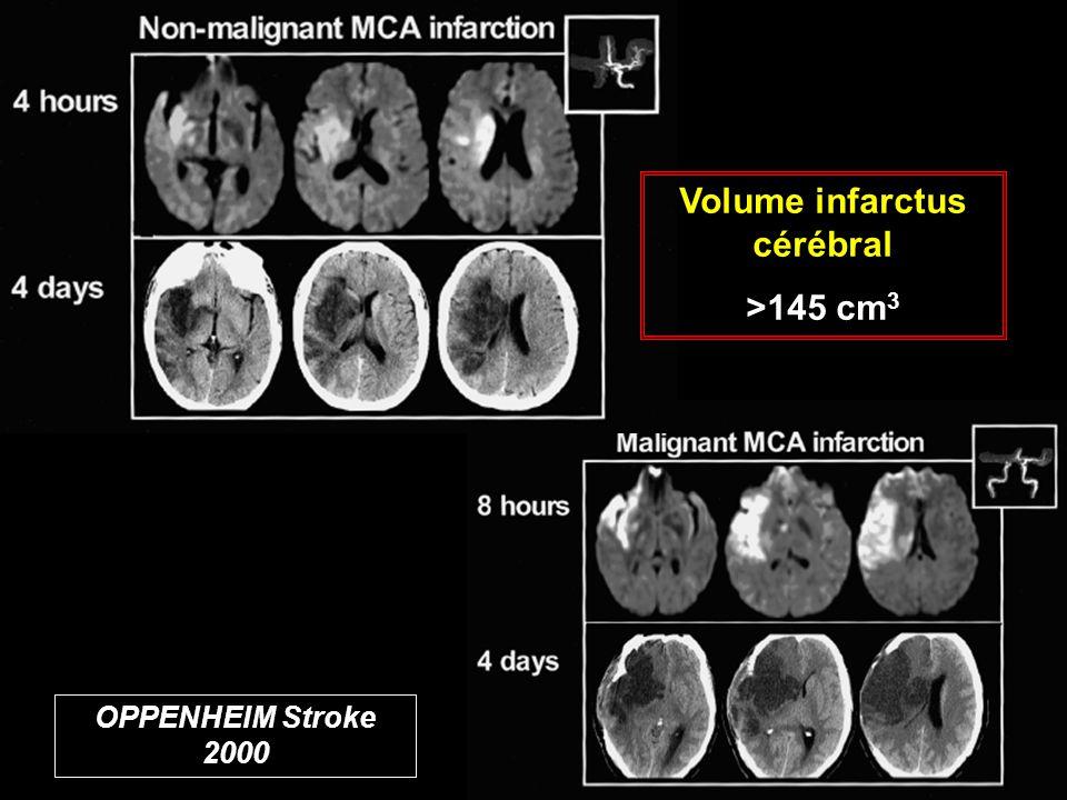 Volume infarctus cérébral