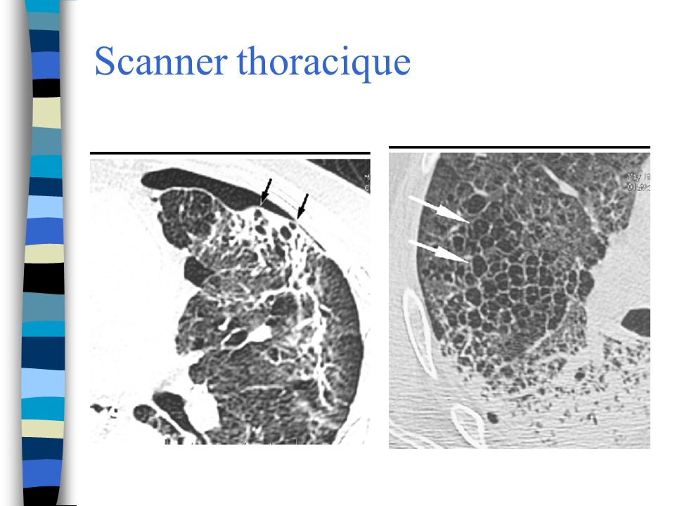 Scanner thoracique