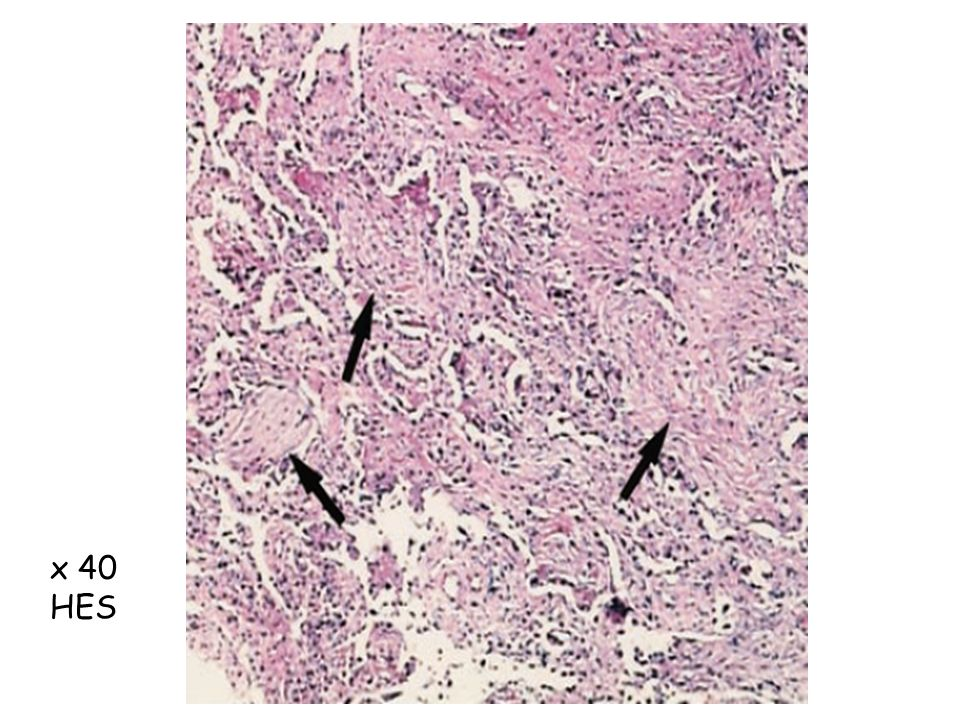 Photomicrograph (original magnification, x 40; hematoxylin-eosin stain) shows diffuse interstitial and intraalveolar fibroblastic proliferation (arrows) with some mononuclear cell infiltration (diffuse alveolar damage, organizing stage)