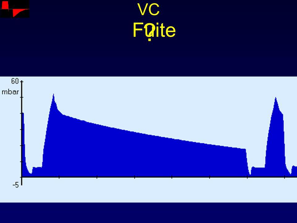 VC Fuite