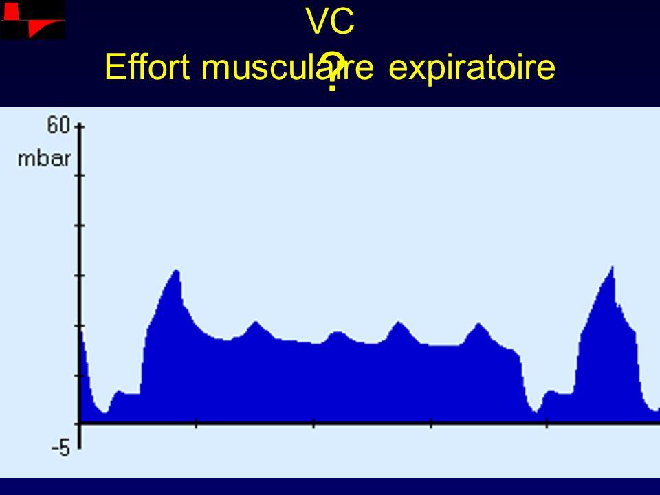 Effort musculaire expiratoire