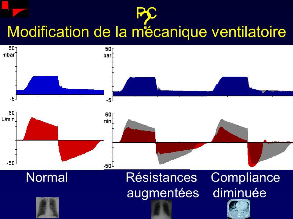 PC Modification de la mécanique ventilatoire
