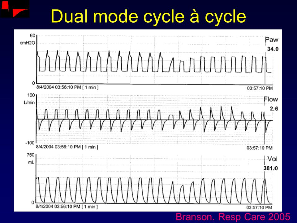 Dual mode cycle à cycle Branson. Resp Care 2005